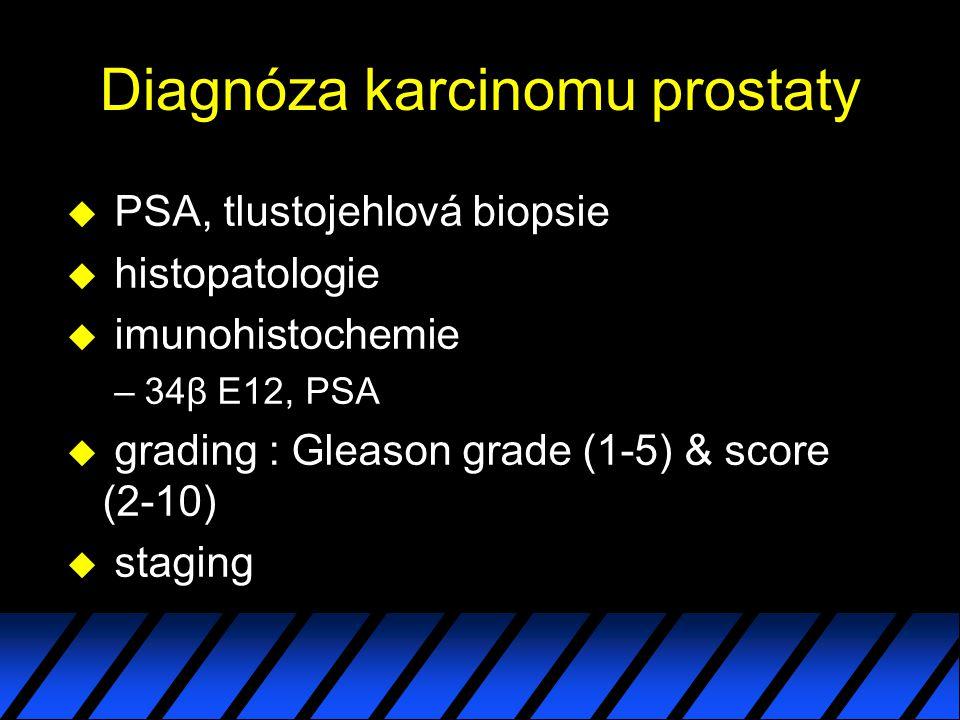 Diagnóza karcinomu prostaty u PSA, tlustojehlová biopsie u histopatologie u imunohistochemie –34β E12, PSA u grading : Gleason grade (1-5) & score (2-