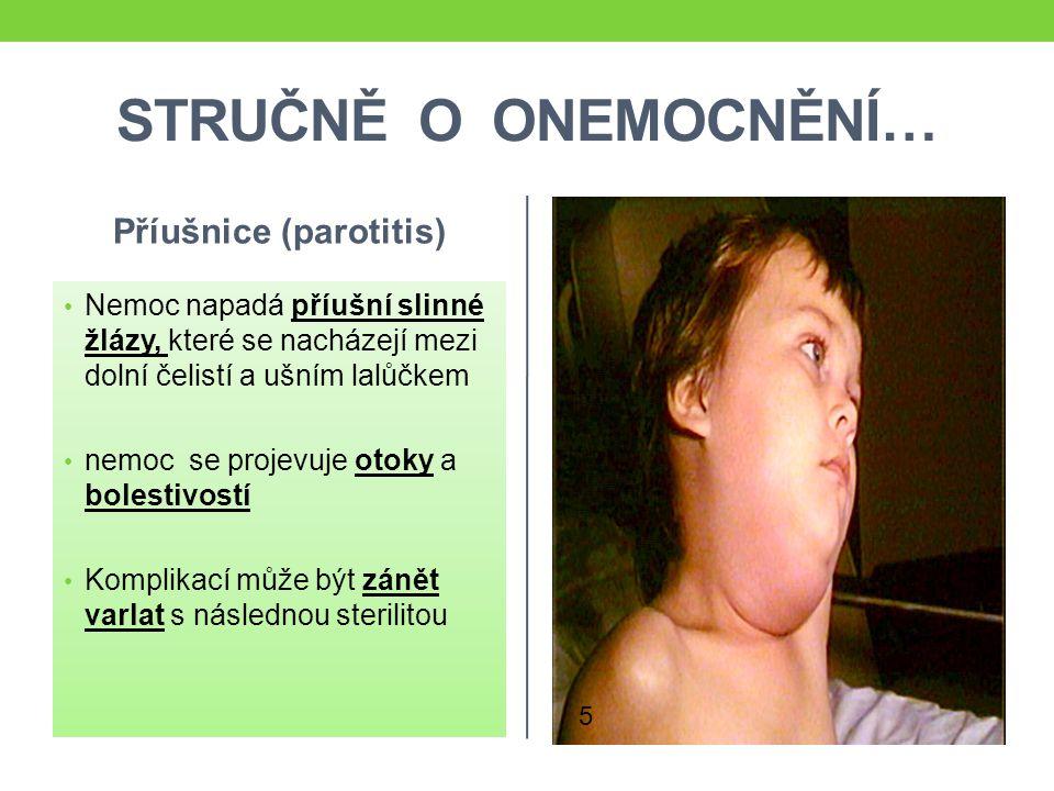 STRUČNĚ O ONEMOCNĚNÍ… Příušnice (parotitis) Nemoc napadá příušní slinné žlázy, které se nacházejí mezi dolní čelistí a ušním lalůčkem nemoc se projevu