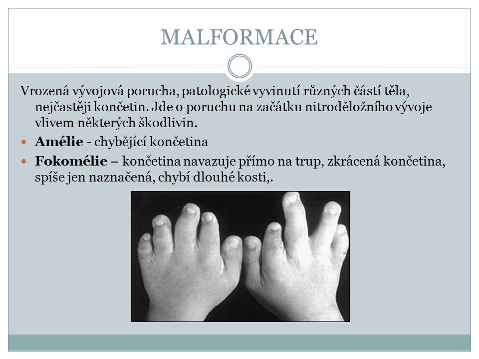 MALFORMACE Vrozená vývojová porucha, patologické vyvinutí různých částí těla, nejčastěji končetin. Jde o poruchu na začátku nitroděložního vývoje vliv