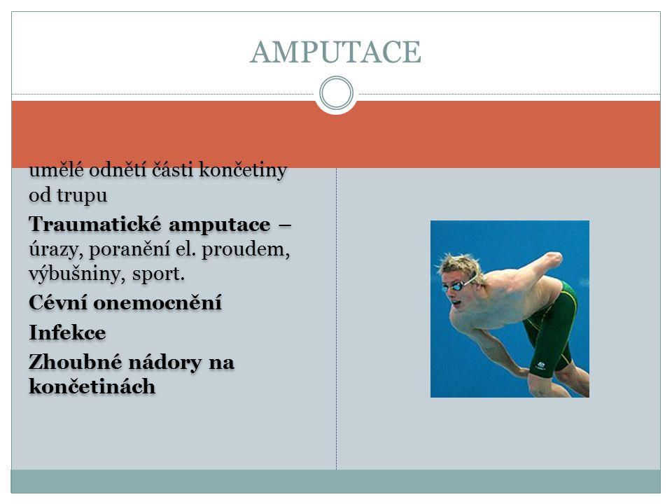 umělé odnětí části končetiny od trupu Traumatické amputace – úrazy, poranění el. proudem, výbušniny, sport. Cévní onemocnění Infekce Zhoubné nádory na