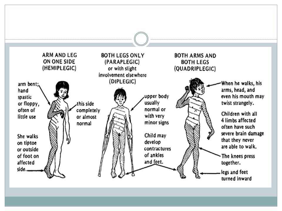 MALFORMACE Vrozená vývojová porucha, patologické vyvinutí různých částí těla, nejčastěji končetin.