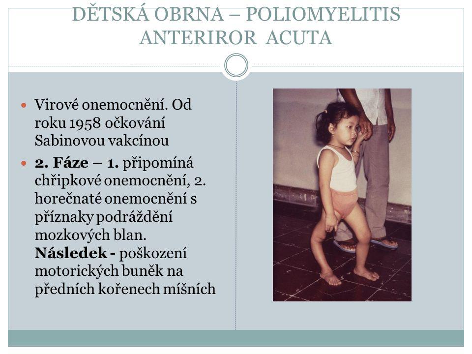 DĚTSKÁ OBRNA – POLIOMYELITIS ANTERIROR ACUTA Virové onemocnění. Od roku 1958 očkování Sabinovou vakcínou 2. Fáze – 1. připomíná chřipkové onemocnění,