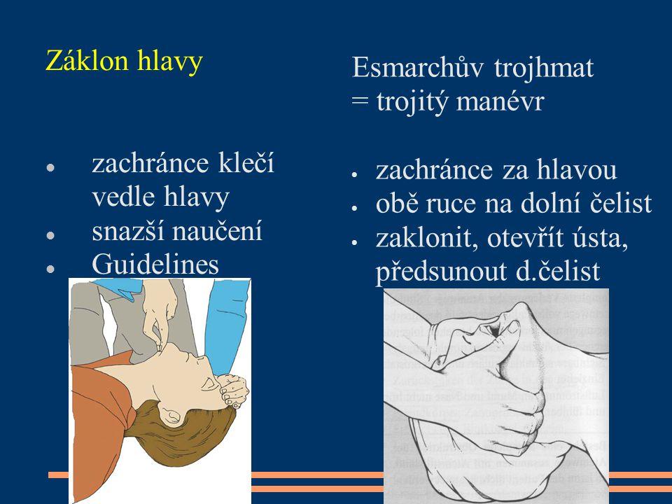Záklon hlavy zachránce klečí vedle hlavy snazší naučení Guidelines 2005+10 Esmarchův trojhmat = trojitý manévr  zachránce za hlavou  obě ruce na dol