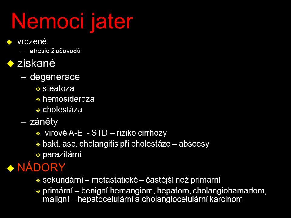 Nemoci jater u vrozené –atresie žlučovodů u získané –degenerace v steatoza v hemosideroza v cholestáza –záněty v virové A-E - STD – riziko cirrhozy v