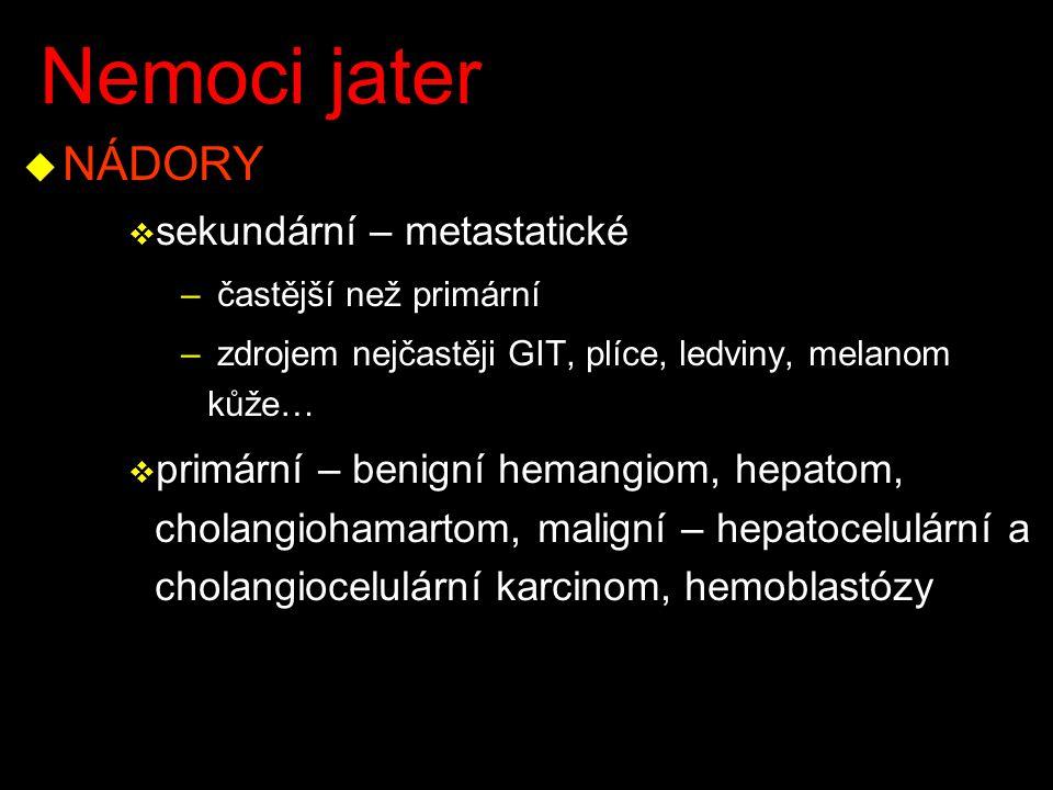 Nemoci jater u NÁDORY v sekundární – metastatické – častější než primární – zdrojem nejčastěji GIT, plíce, ledviny, melanom kůže… v primární – benigní