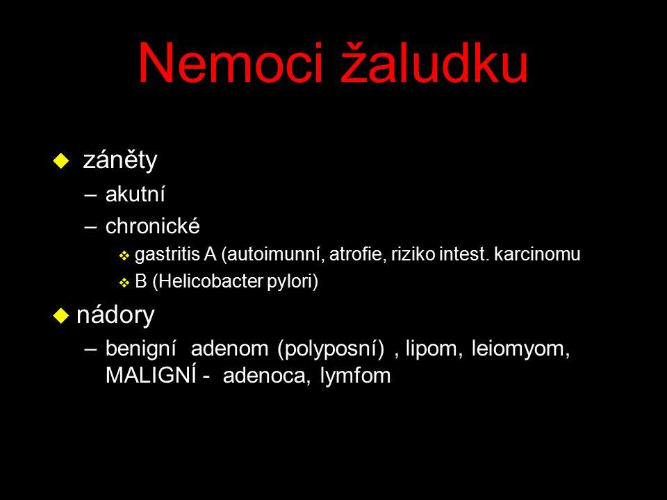 Nemoci žaludku u záněty –akutní –chronické v gastritis A (autoimunní, atrofie, riziko intest. karcinomu v B (Helicobacter pylori) u nádory –benigní ad