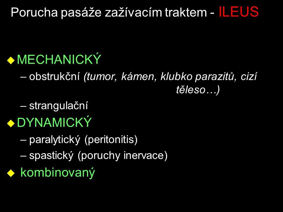 Porucha pasáže zažívacím traktem - ILEUS u MECHANICKÝ –obstrukční (tumor, kámen, klubko parazitů, cizí těleso…) –strangulační u DYNAMICKÝ –paralytický