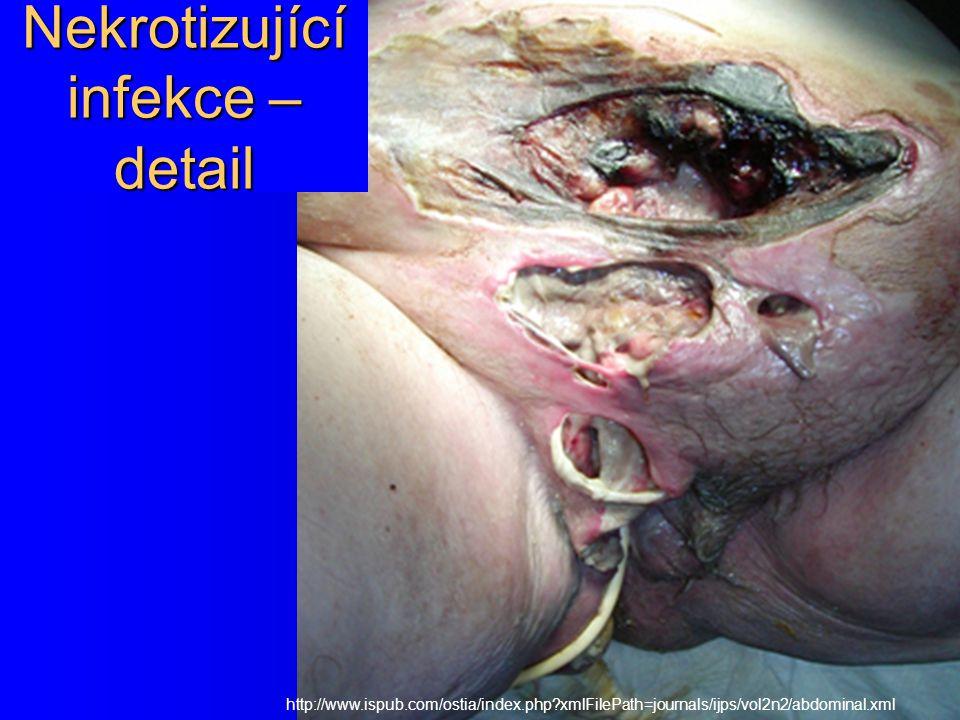 Nekrotizující infekce – detail http://www.ispub.com/ostia/index.php?xmlFilePath=journals/ijps/vol2n2/abdominal.xml