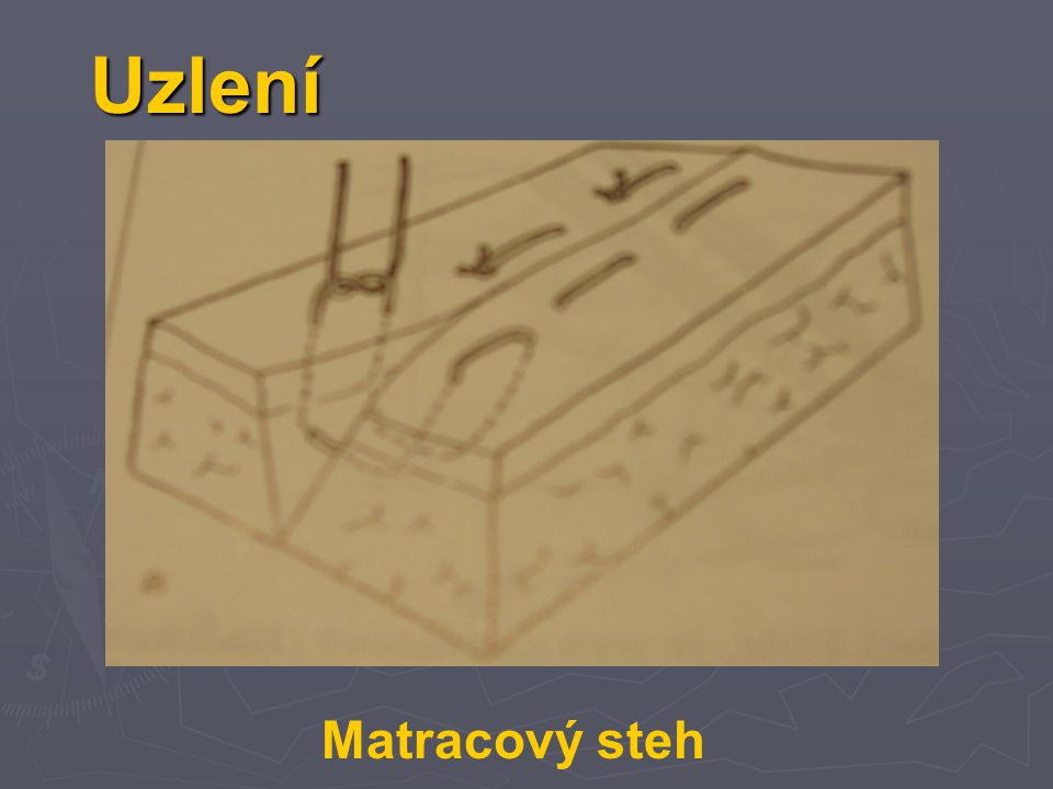 Uzlení Matracový steh