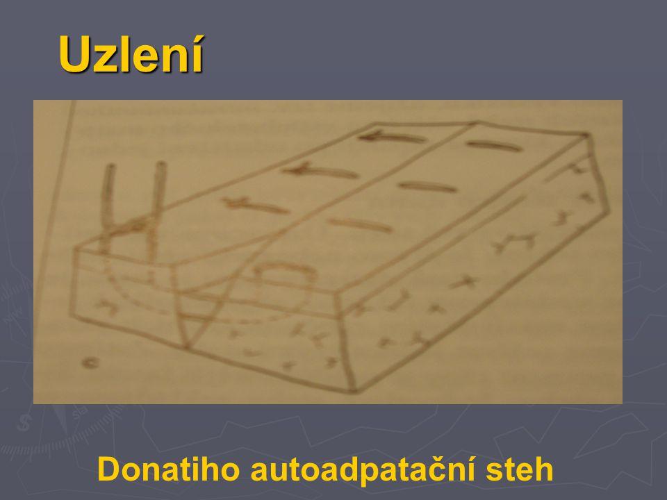Uzlení Donatiho autoadpatační steh