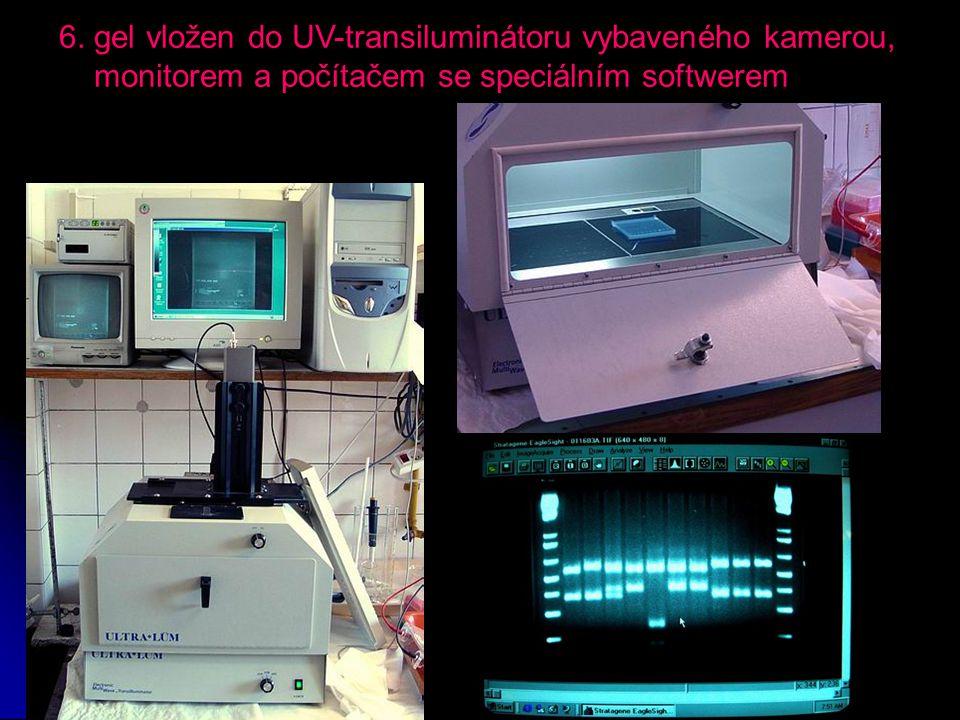 6. gel vložen do UV-transiluminátoru vybaveného kamerou, monitorem a počítačem se speciálním softwerem