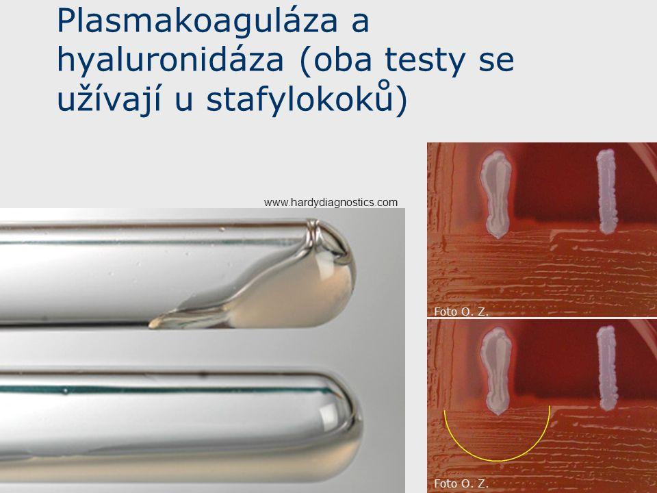 Plasmakoaguláza a hyaluronidáza (oba testy se užívají u stafylokoků) www.hardydiagnostics.com Foto O. Z.