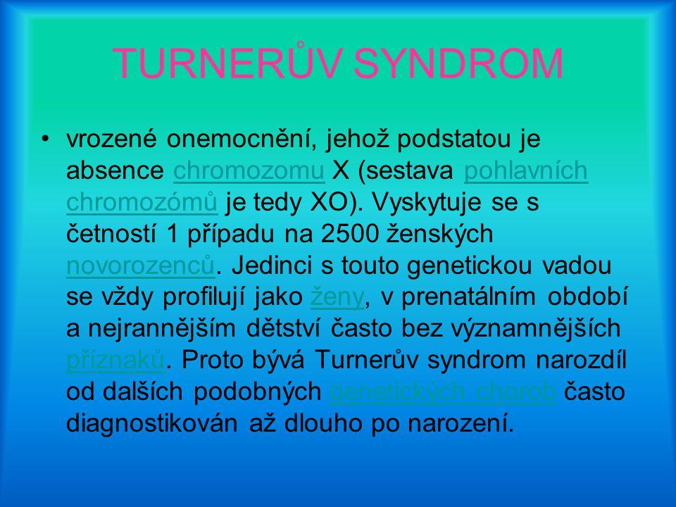 TURNERŮV SYNDROM vrozené onemocnění, jehož podstatou je absence chromozomu X (sestava pohlavních chromozómů je tedy XO). Vyskytuje se s četností 1 pří