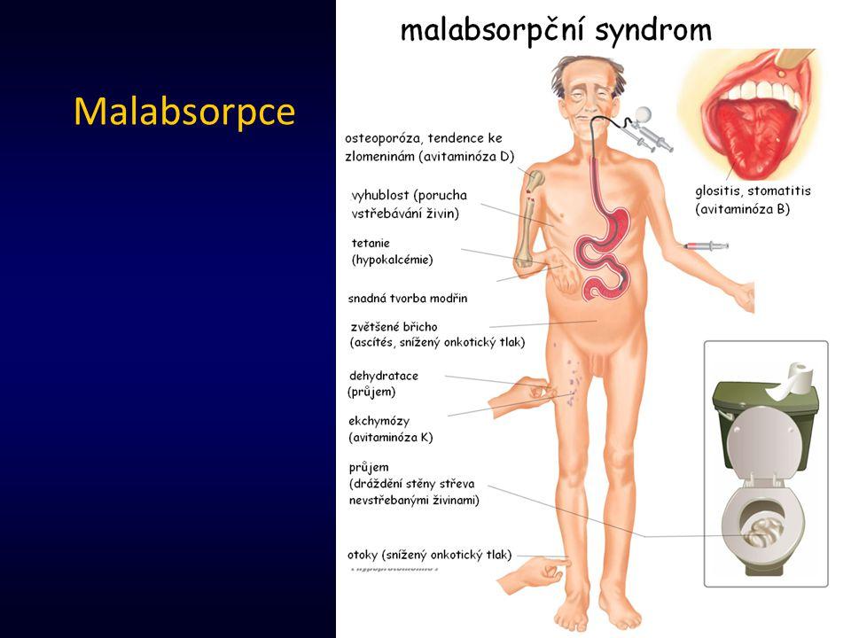 25 Malabsorpce