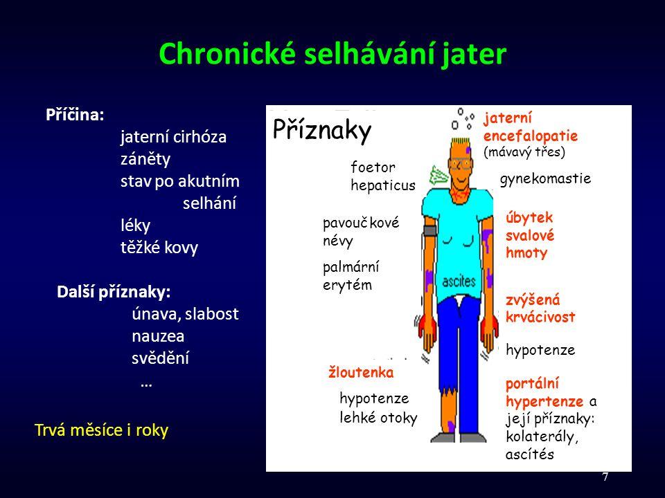 7 Chronické selhávání jater foetor hepaticus jaterní encefalopatie (mávavý třes) gynekomastie úbytek svalové hmoty zvýšená krvácivost pavoučkové névy