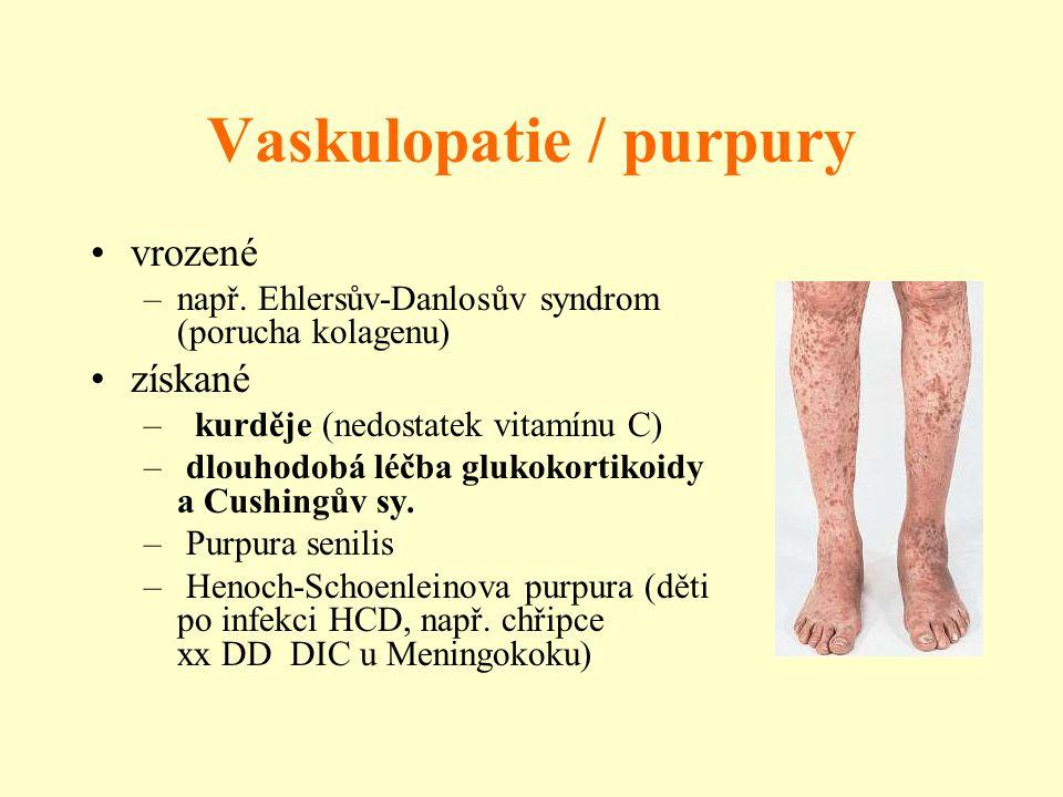 Vaskulopatie / purpury vrozené –např. Ehlersův-Danlosův syndrom (porucha kolagenu) získané – kurděje (nedostatek vitamínu C) – dlouhodobá léčba glukok