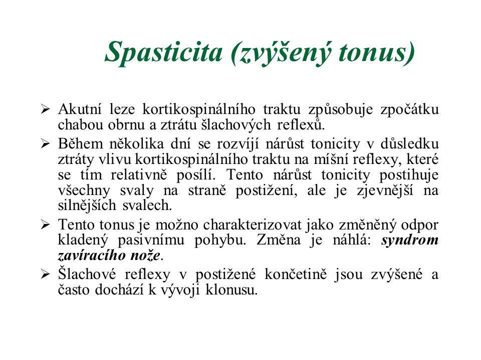 Spasticita (zvýšený tonus)  Akutní leze kortikospinálního traktu způsobuje zpočátku chabou obrnu a ztrátu šlachových reflexů.  Během několika dní se