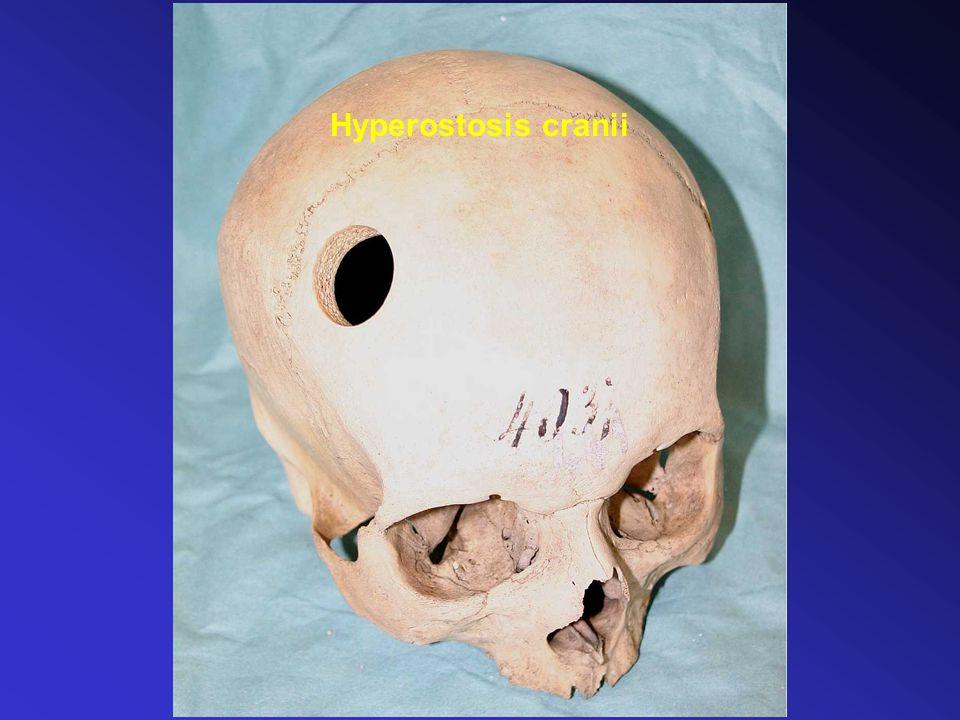 Hyperostosis cranii