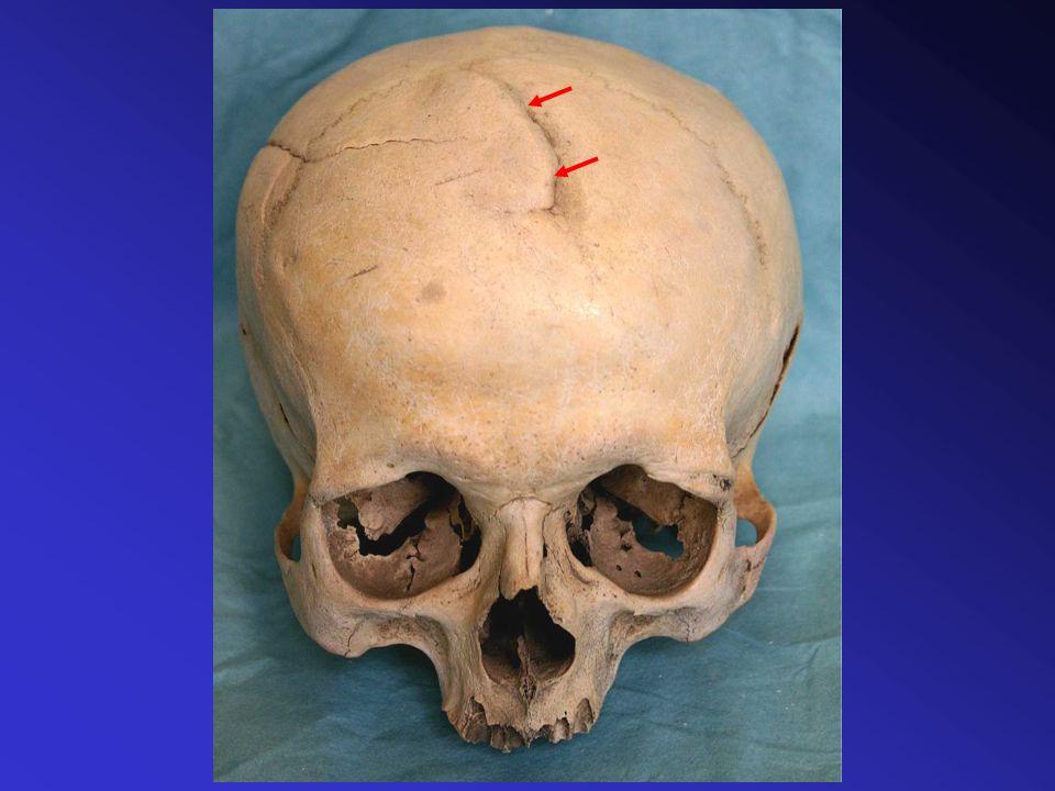 Atrofie šupiny kosti týlní s perforací