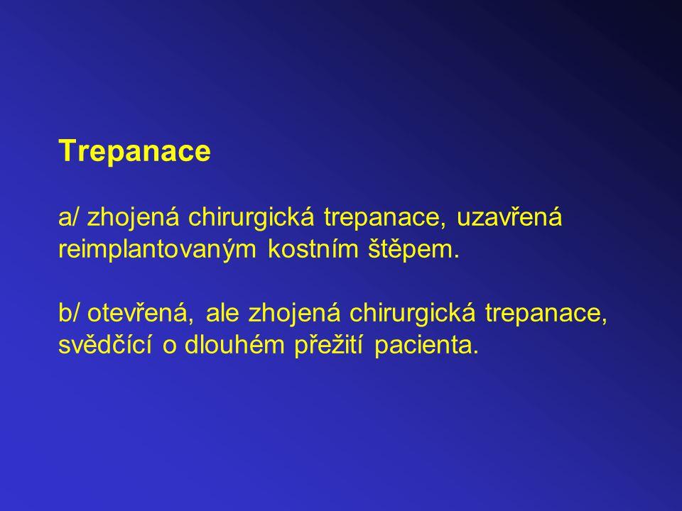 Trepanace a/ zhojená chirurgická trepanace, uzavřená reimplantovaným kostním štěpem. b/ otevřená, ale zhojená chirurgická trepanace, svědčící o dlouhé