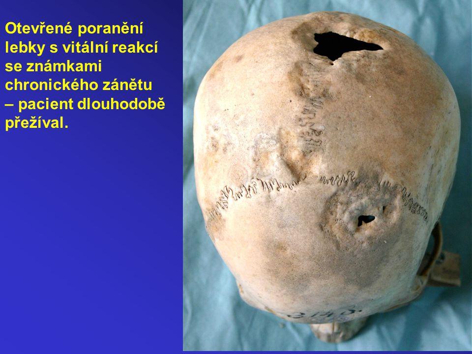 Hydrocephalus Dívka 2,5 roku Největší obvod lebky je 61,5 cm