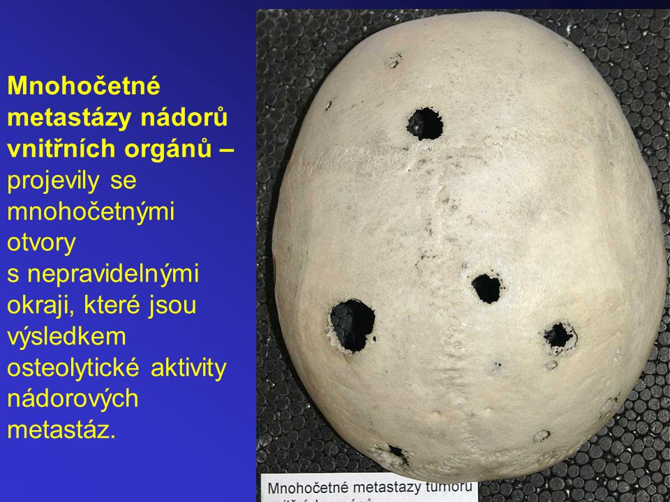Příklad mnohočetných benigních nádorů (osteomy? osifikované chondromy?) deformujících vzhled lebky.