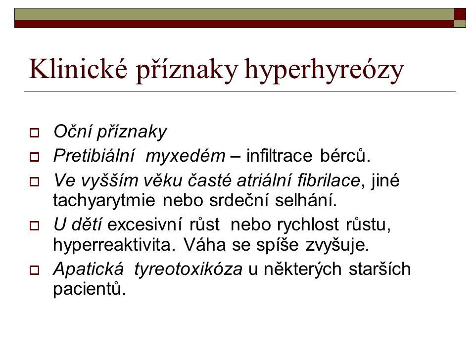 Klinické příznaky hyperhyreózy  Oční příznaky  Pretibiální myxedém – infiltrace bérců.  Ve vyšším věku časté atriální fibrilace, jiné tachyarytmie