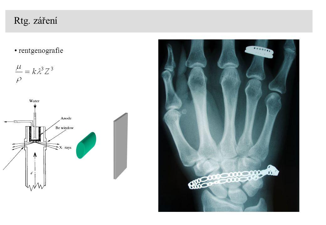 rentgenografie Rtg. záření