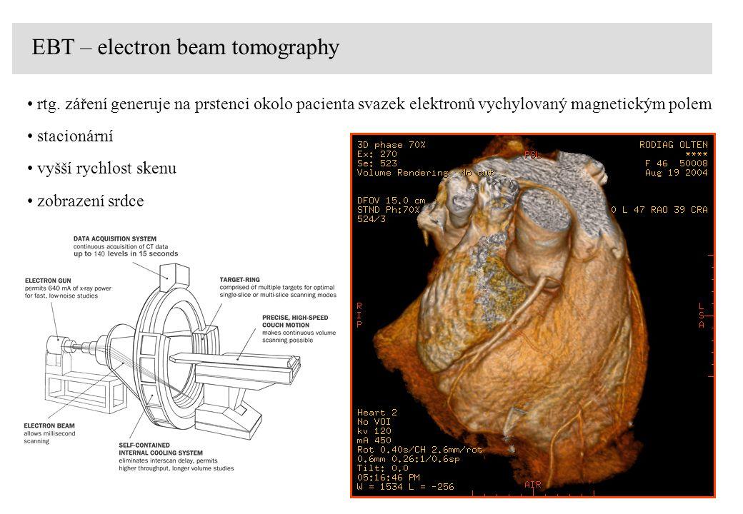 EBT – electron beam tomography rtg. záření generuje na prstenci okolo pacienta svazek elektronů vychylovaný magnetickým polem stacionární vyšší rychlo