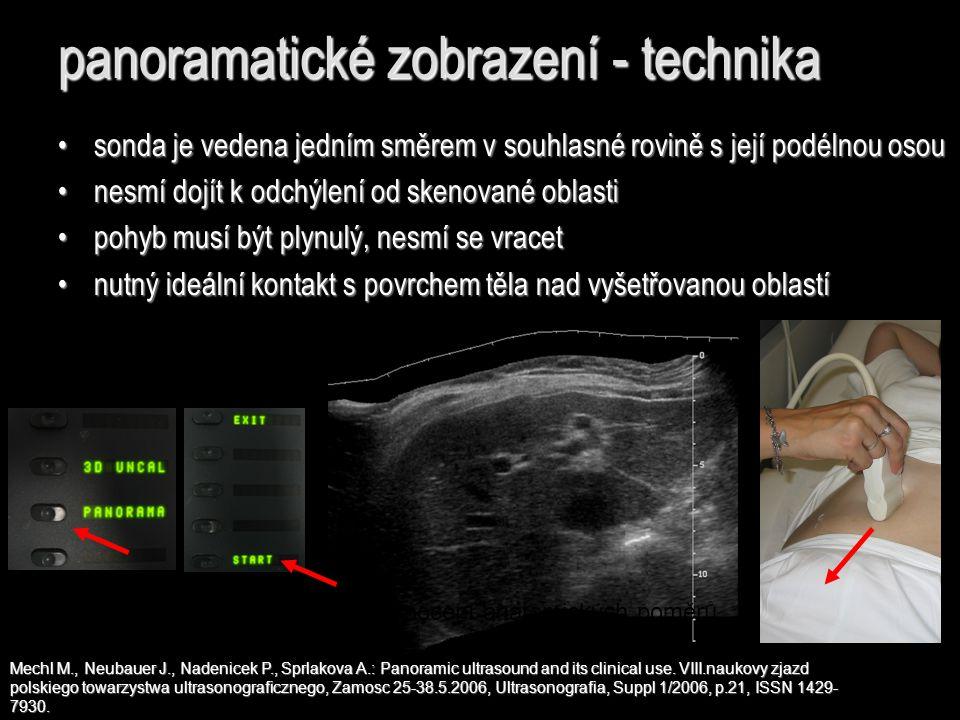panoramatické zobrazení - technika Mechl M., Neubauer J., Nadenicek P., Sprlakova A.: Panoramic ultrasound and its clinical use. VIII.naukovy zjazd po
