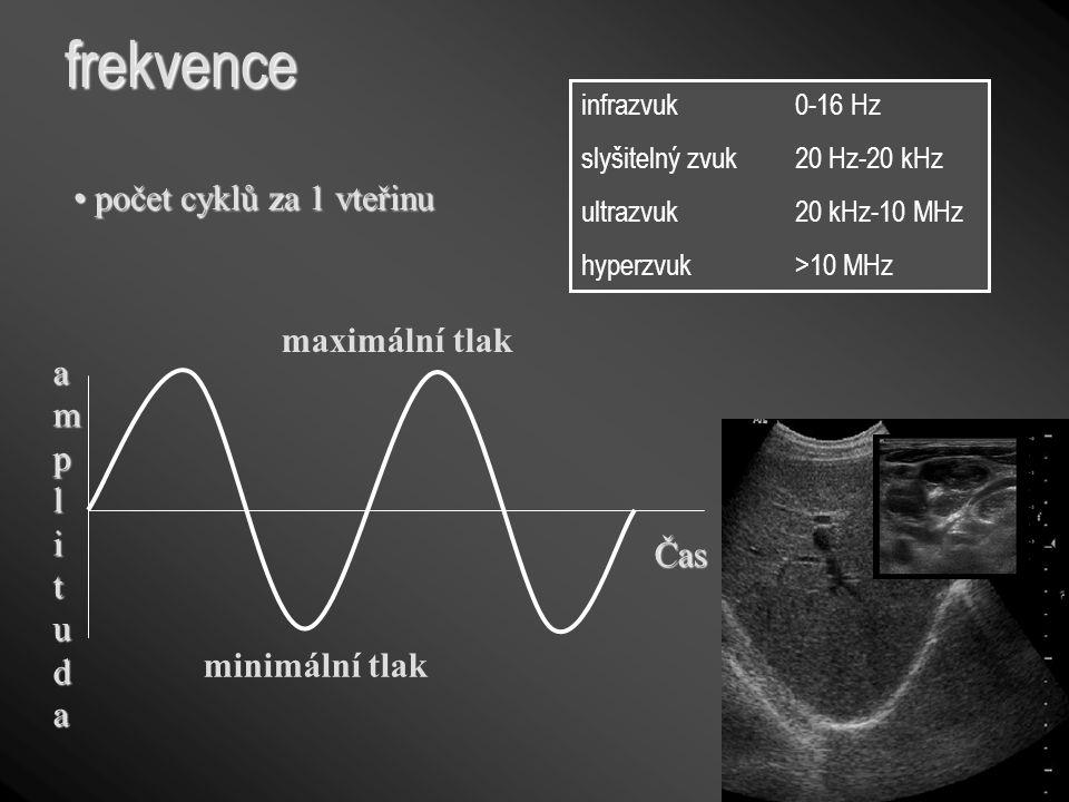 frekvence počet cyklů za 1 vteřinu počet cyklů za 1 vteřinu Čas amplitudaamplitudaamplitudaamplituda maximální tlak minimální tlak infrazvuk 0-16 Hz s