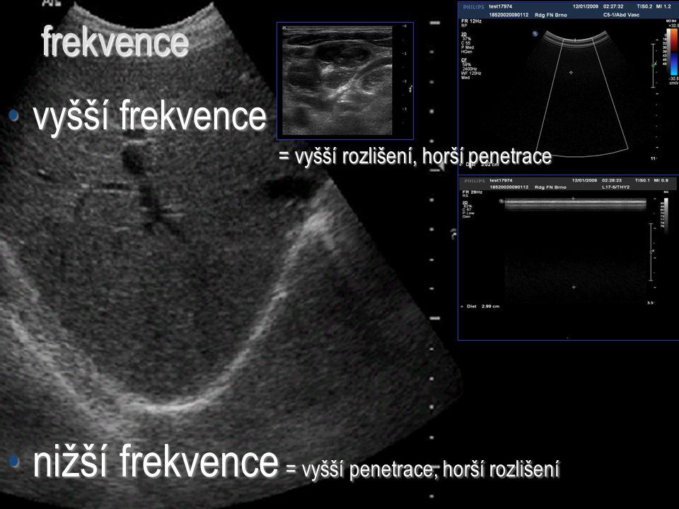 frekvence vyšší frekvencevyšší frekvence = vyšší rozlišení, horší penetrace nižší frekvence = vyšší penetrace, horší rozlišenínižší frekvence = vyšší
