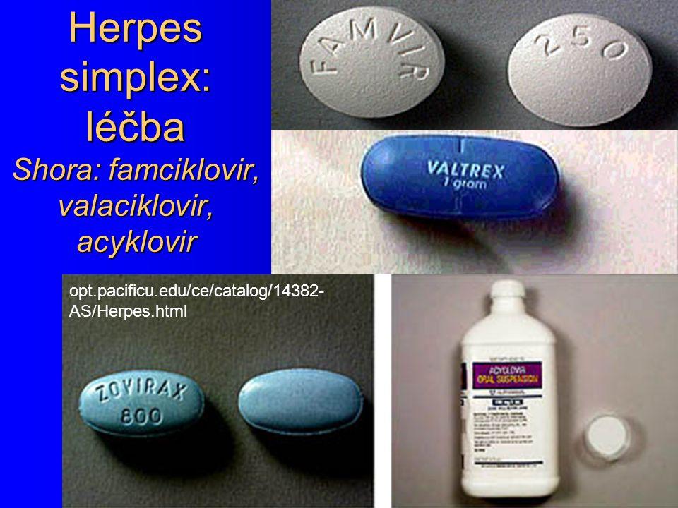 Herpes simplex: léčba Shora: famciklovir, valaciklovir, acyklovir opt.pacificu.edu/ce/catalog/14382- AS/Herpes.html