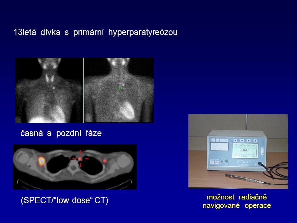 13letá dívka s primární hyperparatyreózou časná a pozdní fáze (SPECT/ low-dose CT) možnost radiačně navigované operace