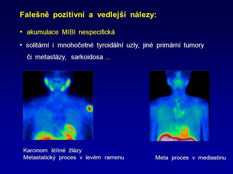 14 Falešně pozitivní a vedlejší nálezy: akumulace MIBI nespecifická solitární i mnohočetné tyroidální uzly, jiné primární tumory či metastázy, sarkoidosa … Karcinom štítné žlázy Metastatický proces v levém ramenu Meta proces v mediastinu