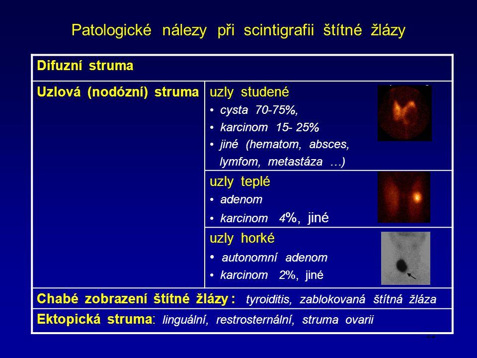 22 Patologické nálezy při scintigrafii štítné žlázy Difuzní struma Uzlová (nodózní) strumauzly studené cysta 70-75%, karcinom 15- 25% jiné (hematom, absces, lymfom, metastáza …) uzly teplé adenom karcinom 4 %, jiné uzly horké autonomní adenom karcinom 2%, jiné Chabé zobrazení štítné žlázy : tyroiditis, zablokovaná štítná žláza Ektopická struma: linguální, restrosternální, struma ovarii