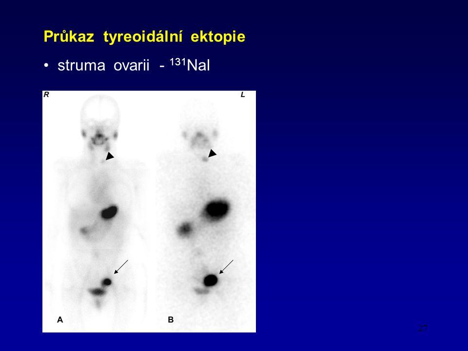 27 Průkaz tyreoidální ektopie struma ovarii - 131 NaI
