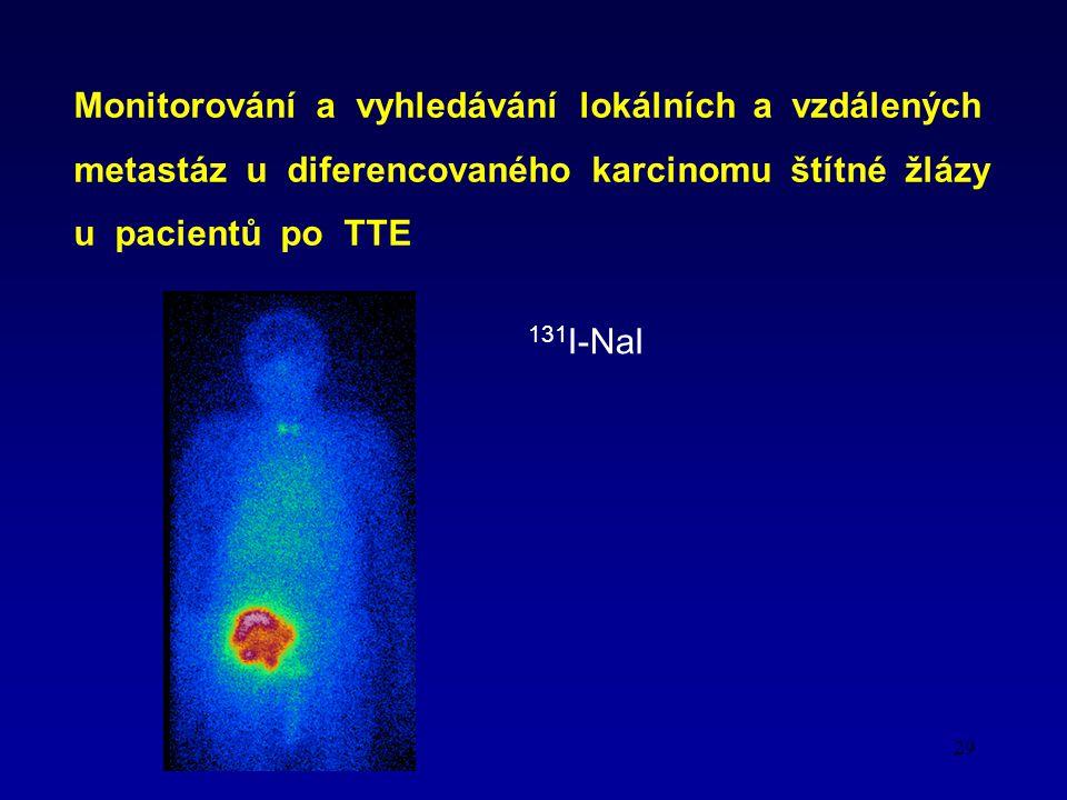 29 Monitorování a vyhledávání lokálních a vzdálených metastáz u diferencovaného karcinomu štítné žlázy u pacientů po TTE 131 I-NaI