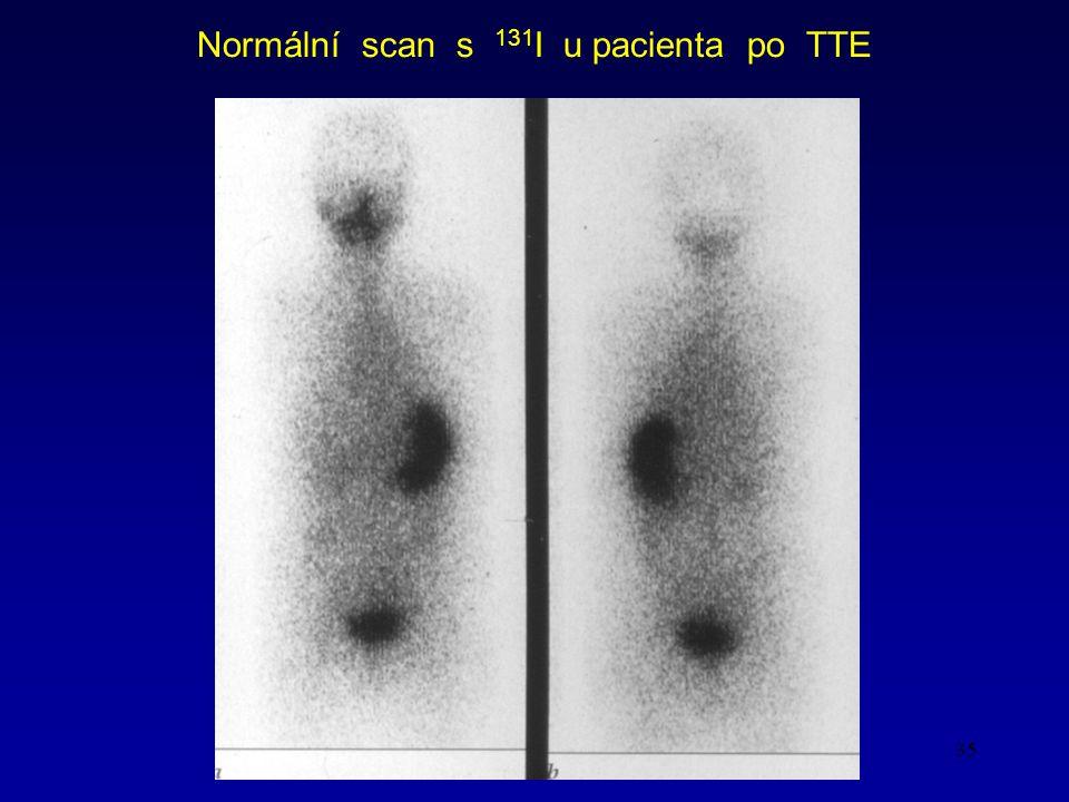 35 Normální scan s 131 I u pacienta po TTE
