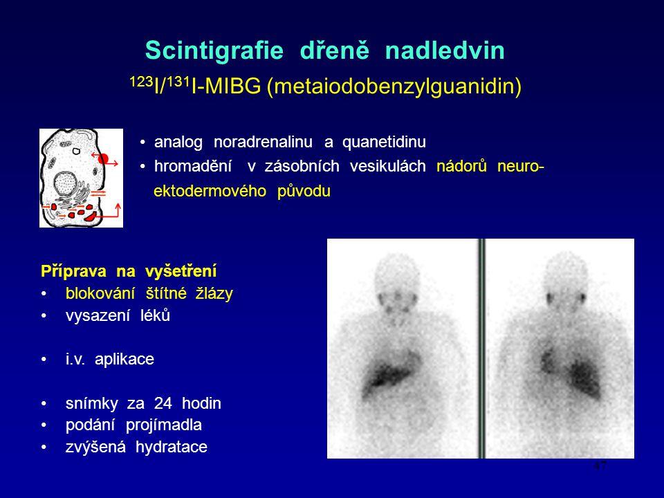47 Scintigrafie dřeně nadledvin 123 I/ 131 I- MIBG (metaiodobenzylguanidin) analog noradrenalinu a quanetidinu hromadění v zásobních vesikulách nádorů neuro- ektodermového původu Příprava na vyšetření blokování štítné žlázy vysazení léků i.v.