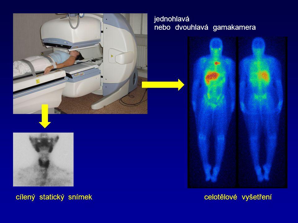 cílený statický snímek celotělové vyšetření jednohlavá nebo dvouhlavá gamakamera
