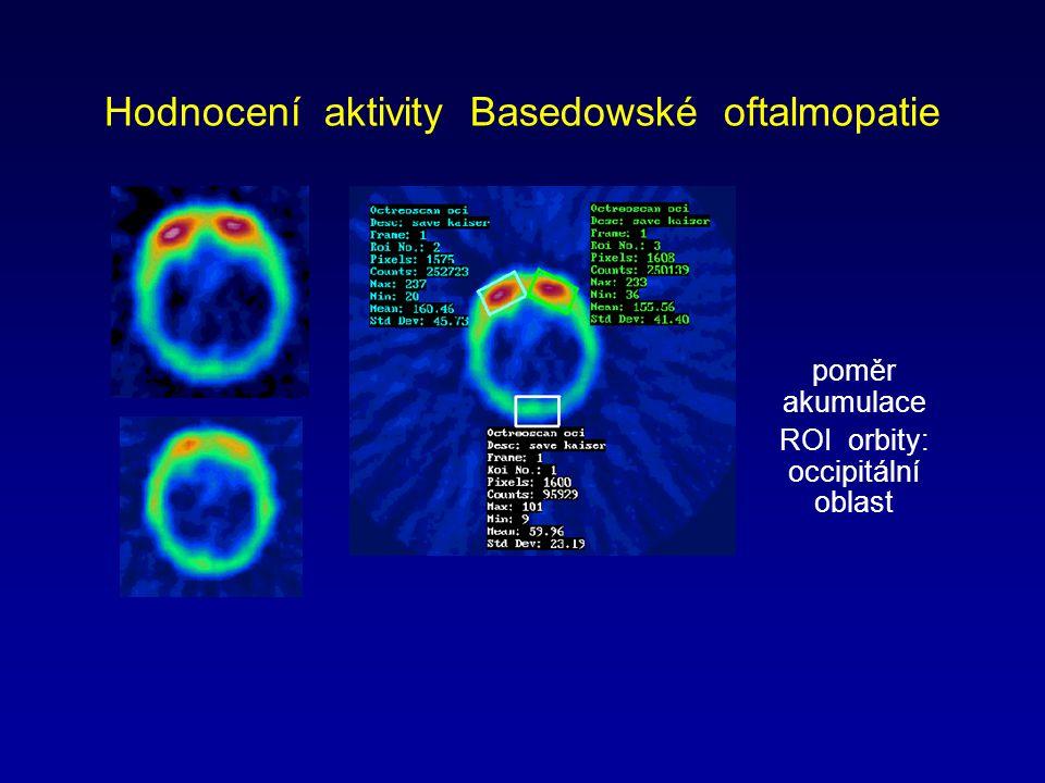 Hodnocení aktivity Basedowské oftalmopatie poměr akumulace ROI orbity: occipitální oblast