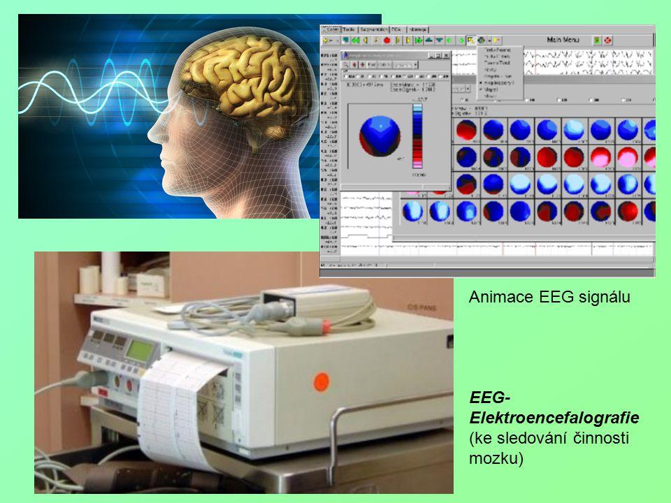 Animace EEG signálu EEG- Elektroencefalografie (ke sledování činnosti mozku)
