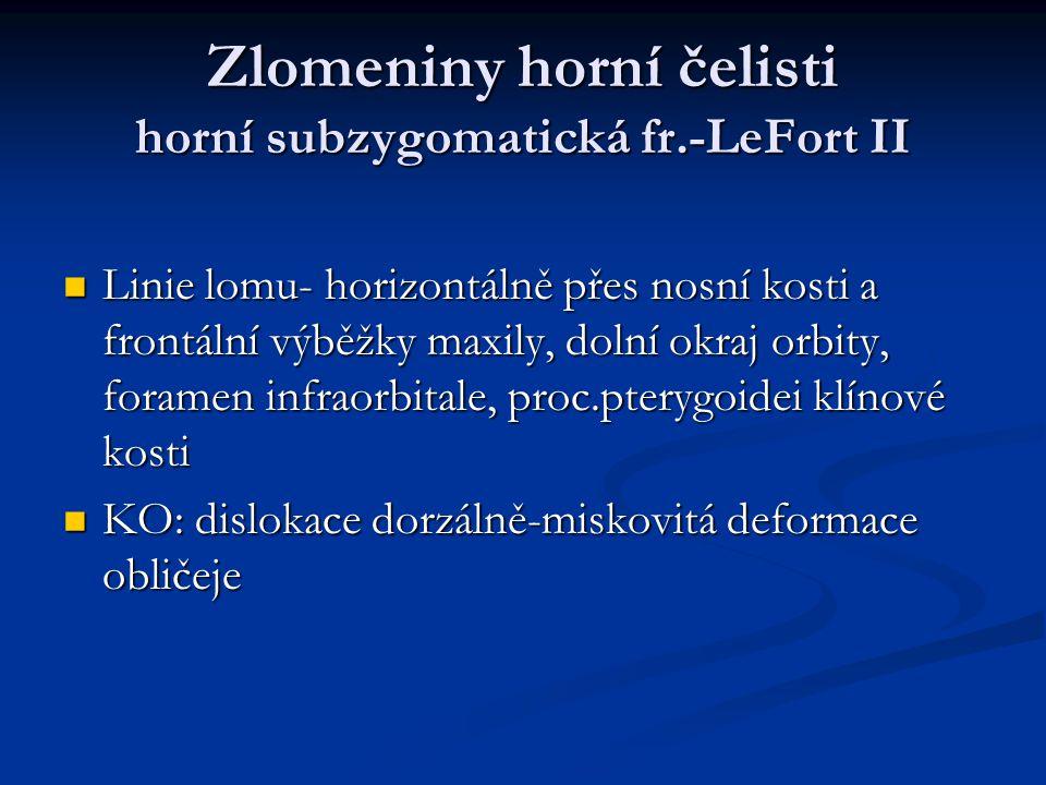 Zlomeniny horní čelisti horní subzygomatická fr.-LeFort II Linie lomu- horizontálně přes nosní kosti a frontální výběžky maxily, dolní okraj orbity, f