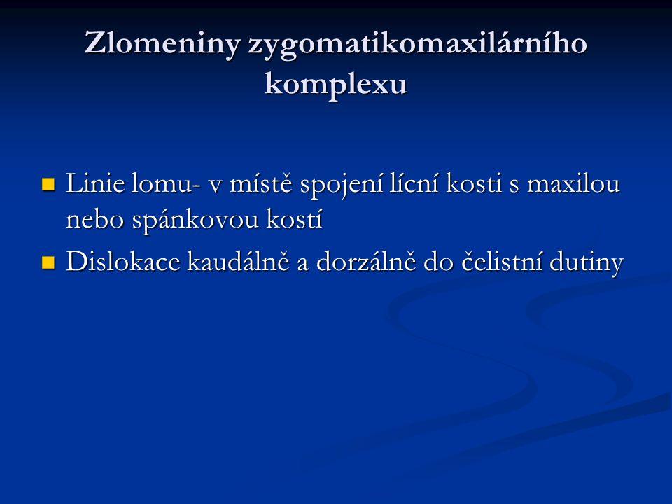 Zlomeniny zygomatikomaxilárního komplexu Linie lomu- v místě spojení lícní kosti s maxilou nebo spánkovou kostí Linie lomu- v místě spojení lícní kost