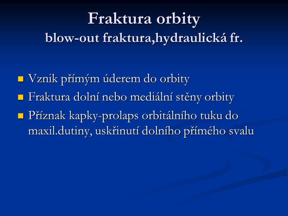 Fraktura orbity blow-out fraktura,hydraulická fr. Vznik přímým úderem do orbity Vznik přímým úderem do orbity Fraktura dolní nebo mediální stěny orbit