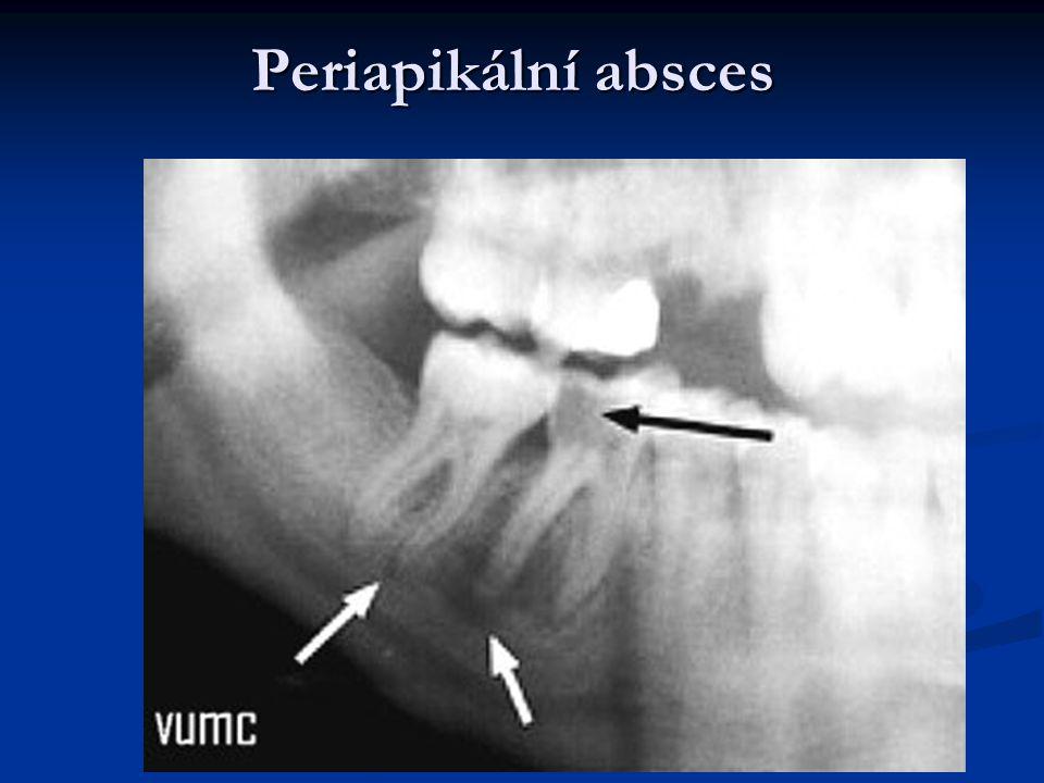 Periapikální absces