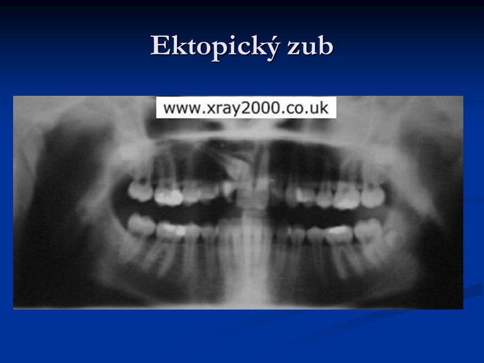 Ektopický zub