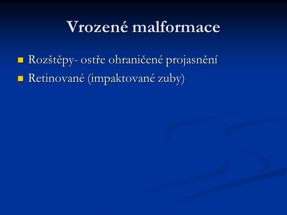Vrozené malformace Rozštěpy- ostře ohraničené projasnění Rozštěpy- ostře ohraničené projasnění Retinované (impaktované zuby) Retinované (impaktované z