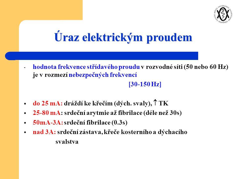 Úraz elektrickým proudem - hodnota frekvence střídavého proudu v rozvodné síti (50 nebo 60 Hz) je v rozmezí nebezpečných frekvencí [30-150 Hz]  do 25